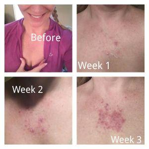 2016 Skin Cancer